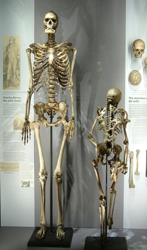 skeleton-charles-byrne-display
